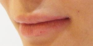 コラーゲン前の唇
