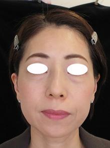 目の下の袋状たるみレーザー治療後