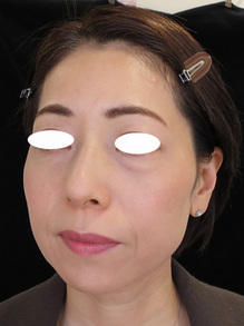 目の下の袋状たるみ治療後