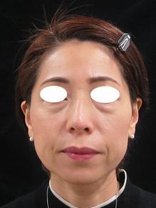 目の下の袋状たるみ