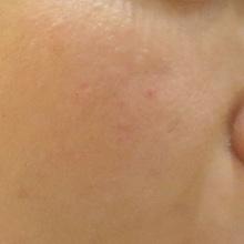 毛穴治療アグネス後の写真のサムネール画像