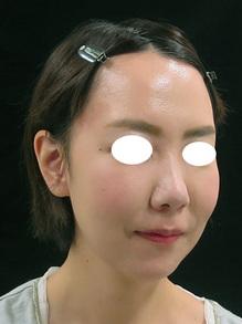 ヒアルロン酸で顔を引き上げ