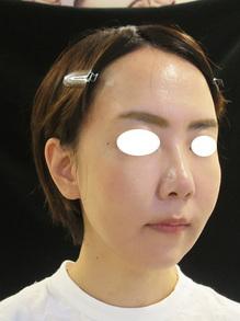 顔のボリューム