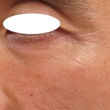 目元にベビーコラーゲン注射のサムネール画像