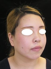 鼻を前に出すヒアルロン酸治療後の写真