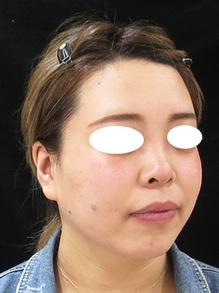 鼻を前に出すヒアルロン酸