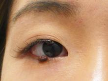 目のキワのほくろ除去