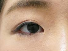 目のキワのほくろレーザー除去後の写真