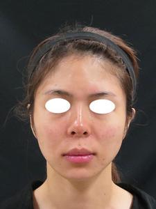 ヒアルロン酸注射ごのサムネール画像