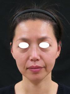 眉間の険しい状態写真