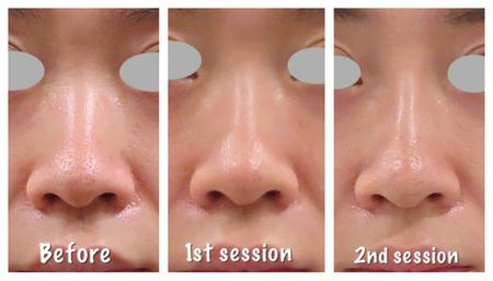鼻のヒアルロン酸形成