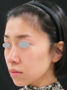 ヒアルロン酸によるリフトアップと鼻高く