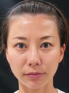 ヒアルロン酸注射前のサムネール画像のサムネール画像