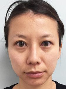 治療前の顔のサムネール画像