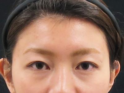 眉間と額と目尻のボトックス後の写真