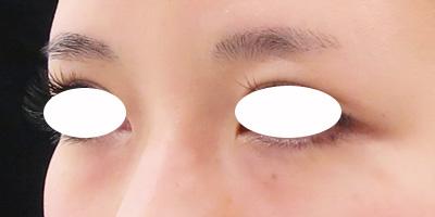目の下のくまコラーゲン注射