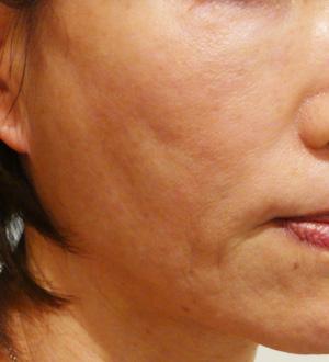 肌の凹凸を治療