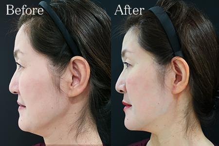 ヒアルロン酸注射後の顔のたるみ改善
