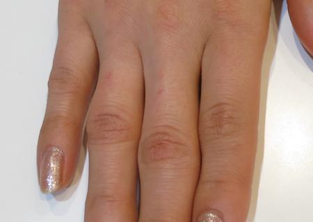 指の節を治療
