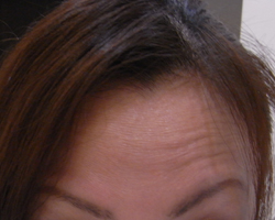 forehead.jpg