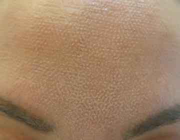 フラクショナルCO2レーザー治療後の画像