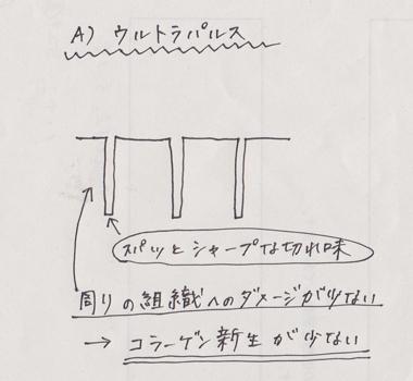 fractional_ultrapulse.jpg