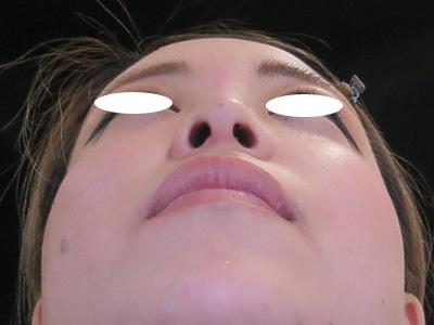 鼻の位置をヒアルロン酸で変えた写真