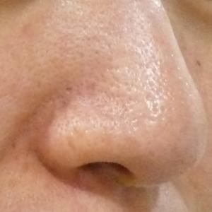 鼻の毛穴開き