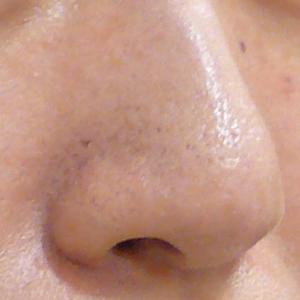 鼻の毛穴開きレーザー治療
