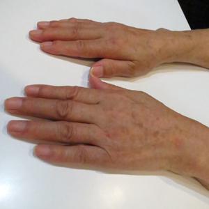 手の甲をヒアルロン酸でふっくら