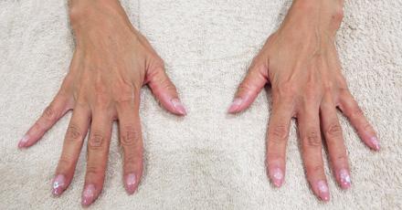 手の甲の血管と腱が目立つ写真