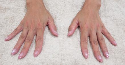 手の甲にヒアルロン酸を注射後