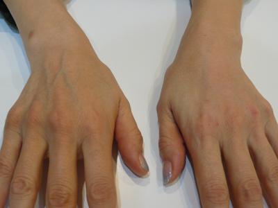 手のヒアルロン酸注射