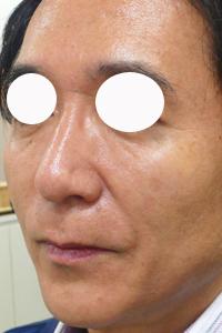 ヒアルロン酸注射によるたるみ治療直後の写真