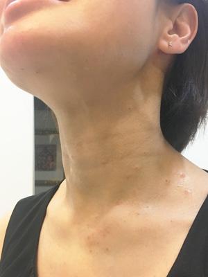 首のいぼ治療後の写真