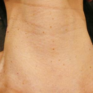 首のいぼレーザー治療