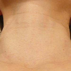 首のいぼレーザー治療傷跡
