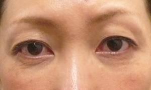 くぼみ目ヒアルロン酸注射