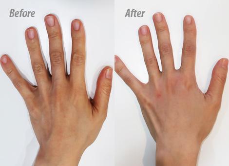 手の甲のヒアルロン酸注射