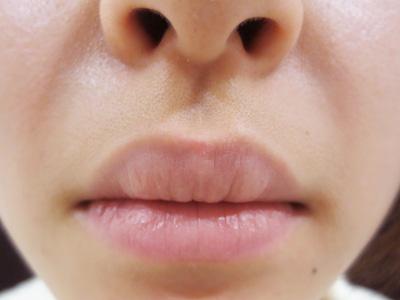 唇のほくろレーザー除去後の写真