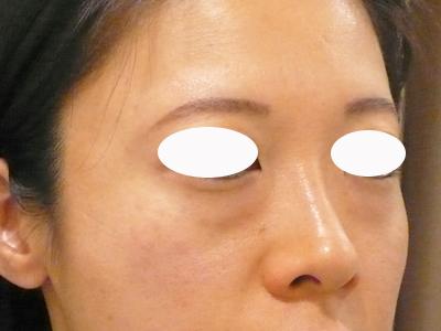 目の下のくま治療前