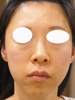 目の下のくまにヒアルロン酸を注射