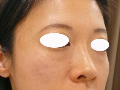 目のクマ治療直後写真