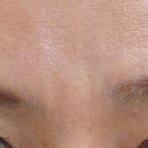 みけんの毛穴開きレーザー治療