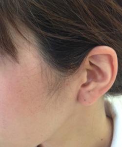 耳たぶピアスマーキング
