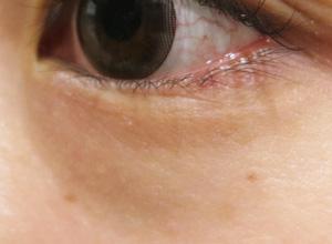 目の近くのほくろ除去後の写真