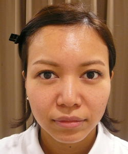 りんかく注射治療前の写真