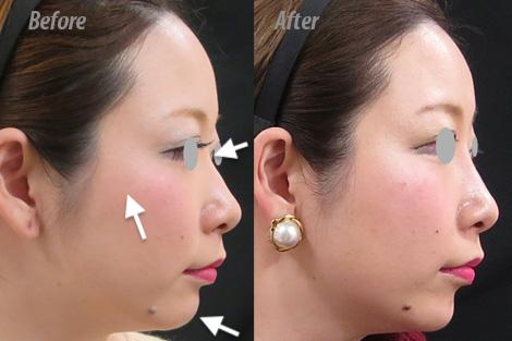 横顔のヒアルロン酸による変化