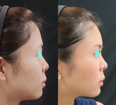 ヒアルロン酸注射の横顔
