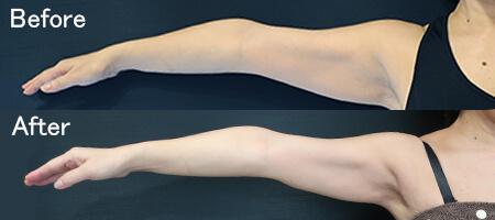 脂肪冷却分解部分痩せ治療の効果クリスタル